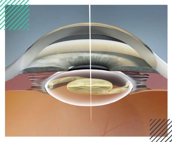 Multifocal-Intraocular-Lens