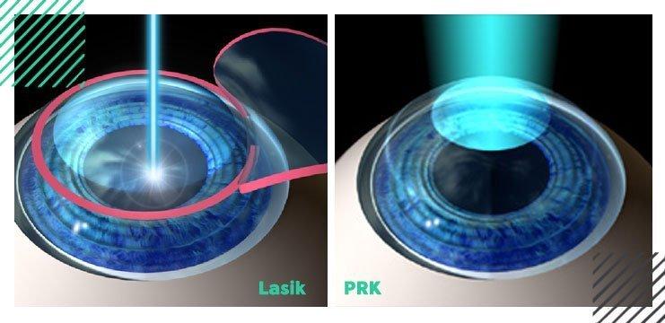 lasik-vs-PRK