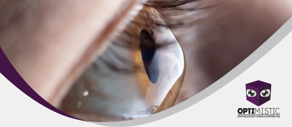 هل يمكن للقرنية المخروطية أن تسبب العمى ؟