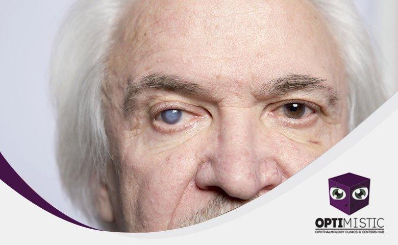 علاج الماء الأبيض في العين